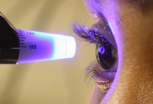 IOP (eye pressure) test